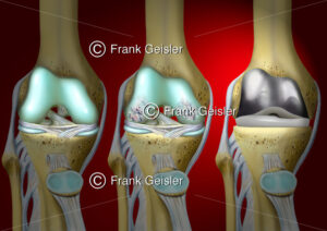 Knie mit Arthrose, Knieprothese bei Kniearthrose (Gonarthose) - Medical Pictures