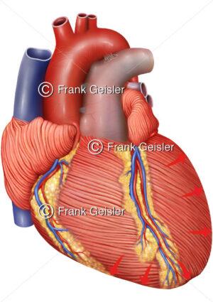 Kontraktion Herz bei Systole, Kontraktionsphase Herzmuskel Myokard - Medical Pictures