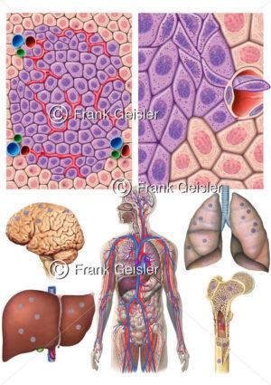 Krebswachstum, Metastasierung Nierenkrebs durch Blutkreislauf, Bildung von Metastasen in Gehirn, Leber, Lunge und Knochen - Medical Pictures