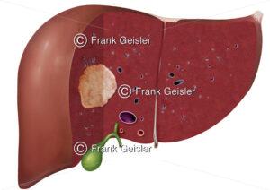 Leber mit Leberkrebs, bösartige Geschwulst Leberzellkrebs hepatozelluläres Karzinom - Medical Pictures