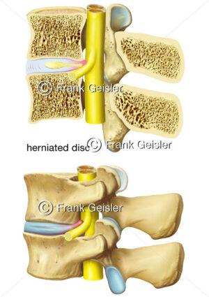 Lendenwirbel mit Rückenmark und Spinalnerv, Diskushernie der Bandscheibe - Medical Pictures