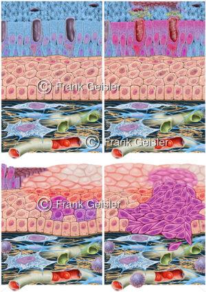 Lungenkrebs, Veränderungen der Schleimhäute in den Bronchien bei Raucherkrebs - Medical Pictures