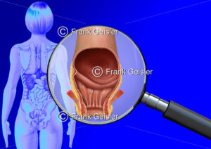 Medical Art Enddarm mit After der Frau, innere Organe im menschlichen Körper - Medical Pictures