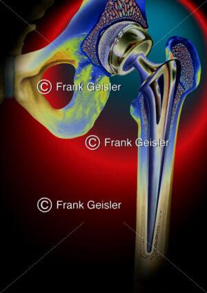 Medical Art Endoprothese, Hüft-TEP, Hüftprothese - Medical Pictures