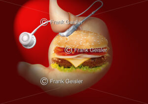 Medical Art Magenband bei Adipositas (Fettsucht) - Medical Pictures