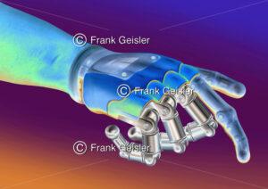 Medical Art Prothetik in der Bionik, Handprothese der Hand - Medical Pictures