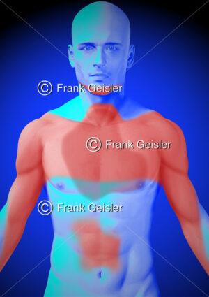 Medical Art Schmerzzonen bei koronarer Herzkrankheit Angina pectoris - Medical Pictures