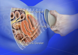 Medical Art Ultraschalluntersuchung, Sonografie Beckenorgane und Geschlechtsorgane der Frau - Medical Pictures