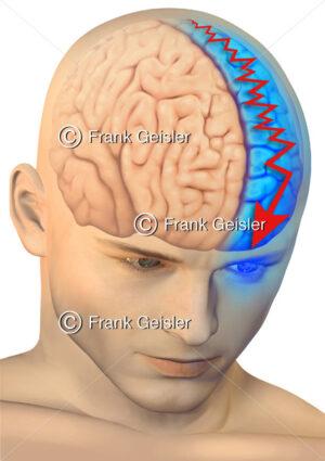 Medical Art halbseitiger Kopfschmerz, Kopfschmerzattacken durch Migräne - Medical Pictures