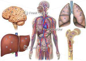 Metastasierung Nierenkrebs durch Blutkreislauf, Bildung von Metastasen in Gehirn, Leber, Lunge und Knochen - Medical Pictures