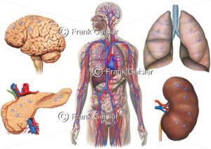 Metastasierung durch Blutkreislauf, Bildung von Metastasen in Gehirn, Lunge, Pankreas und Niere - Medical Pictures