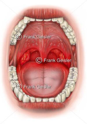 Mund und Rachen mit Mandelentzündung (Tonsillitis acuta, Angina tonsillaris) - Medical Pictures