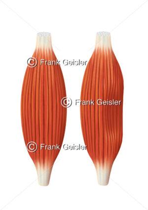Muskel mit Muskelfasern und Muskel nach Muskelprellung (Pferdekuss, Kontusion) - Medical Pictures
