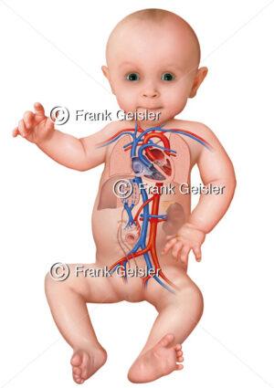 Neugeborenes Baby mit postnatalen (nachgeburtlichen) Blutkreislauf - Medical Pictures