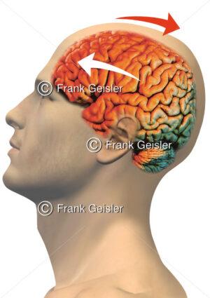 Notfallmedizin, Gehirnerschütterung (Commotio cerebri), Kopf mit Schädel-Hirn-Trauma - Medical Pictures