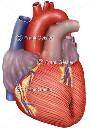 Notfallmedizin, Herz mit Herzmuskelriss, Herzruptur im Myokard - Medical Pictures