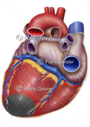 Notfallmedizin, Myokardinfarkt (Herzinfarkt, Herzmuskelinfarkt) des Herzens - Medical Pictures
