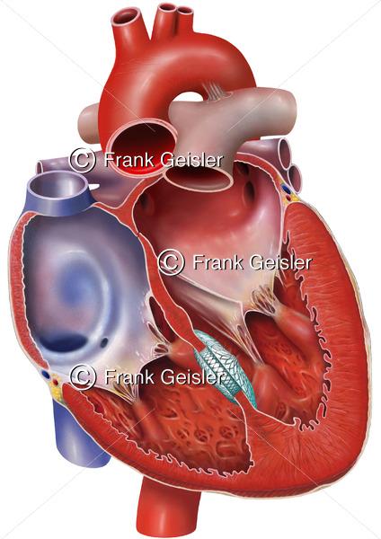 Notfallmedizin, Occluder in Ventrikelseptum nach Ventrikelseptumdefekt, VSD - Medical Pictures