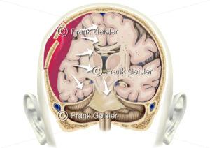 Notfallmedizin Schädel-Hirn-Trauma SHT, Schädeltrauma und Hirndruck durch Hirnblutung bei Schädelfraktur - Medical Pictures