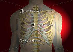Notfallmedizin, Thorax mit doppeltem Rippenbruch - Medical Pictures