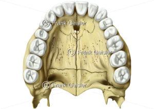 Oberkiefer mit Knochenplatten im Gaumen und obere Zahnreihe - Medical Pictures