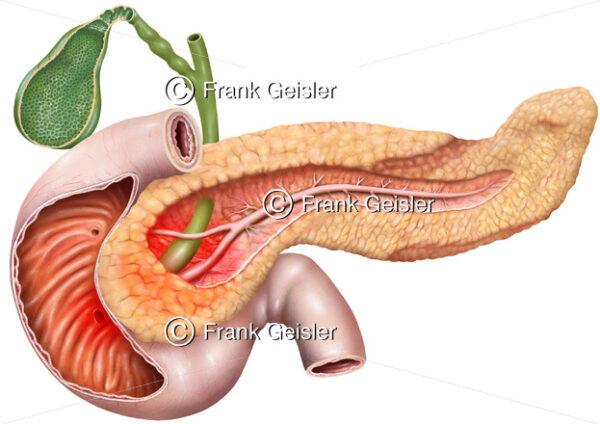 Pankreatitis, Entzündung des Pankreas (Bauchspeicheldrüse) - Medical Pictures