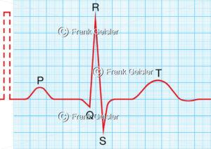 Physiologie Herz EKG, Elektrokardiogramm mit Sinusrhythmus - Medical Pictures