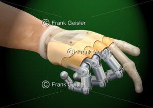Prothetik, Bionik Handprothese nach Amputation der Hand - Medical Pictures