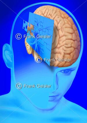 Puzzle mit Nervenzelle (Neuron) und Gehirn, Medical Art Diagnostik in der Neurologie - Medical Pictures