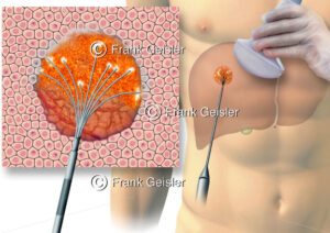 Radiofrequenzablation RFA, Radiofrequenz-Thermoablation bei Tumorgewebe in der Leber - Medical Pictures