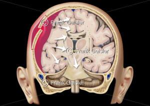 Schädel-Hirn-Trauma, Schädelhirntrauma und Hirndruck durch Schädeltrauma mit Hirnblutung bei Schädelfraktur - Medical Pictures