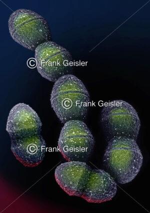 Streptococcus Bakterium, Auslöser einer Streptokokken-Infektion - Medical Pictures