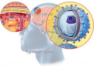 Virusmeningitis der Hirnhäute (Meningen) durch Virus - Medical Pictures