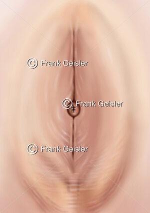 Weibliche Genitalbeschneidung, Genitalverstümmelung der Vagina, pharaonische Beschneidung der Vulva - Medical Pictures