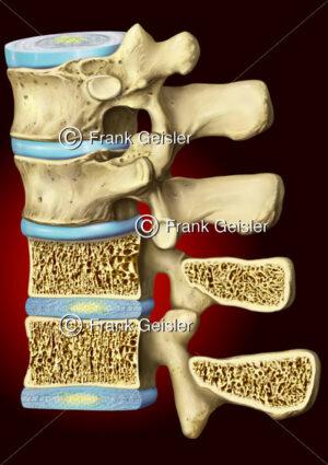 Wirbel der Wirbelsäule mit Osteoporose, Knochenschwund der Wirbelknochen - Medical Pictures