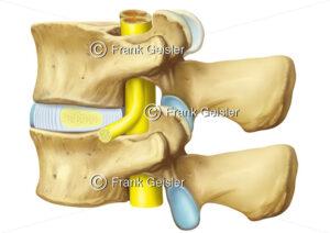 Wirbelkörper der Lendenwirbelsäule mit Bandscheibe und Rückenmark mit Spinalnerv - Medical Pictures