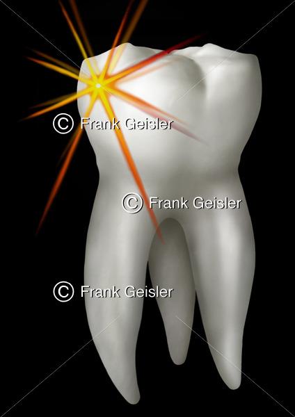 Zahn (Dens) mit Zahnkrone (Corona) und Zahnwurzel (Radix) - Medical Pictures