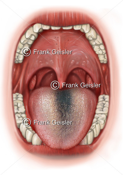 Zungendiagnostik, Zungendiagnose Zungenbelag schwarze Haarzunge Nigritis linguae, Lingua villosa nigra - Medical Pictures