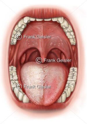 Zungendiagnostik, Zungendiagnose seitlicher Zungenbelag Organe der Organzonen - Medical Pictures