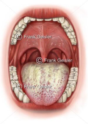 Zungendiagnostik, Zungendiagnose weiß gelber Zungenbelag bei Pilzinfektion wie Candida - Medical Pictures